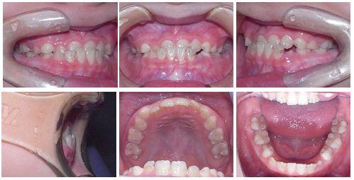 反対咬合 矯正歯科 症例写真