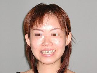 練馬、すきっ歯症例