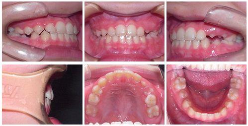 反対咬合 矯正歯科 症例