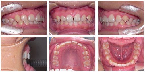 上顎 矯正歯科 症例