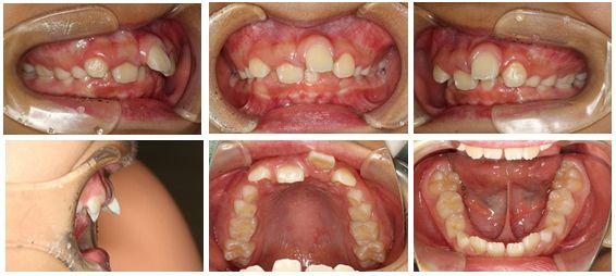 上顎前突 矯正歯科 症例