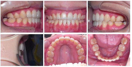 開咬 矯正歯科 症例