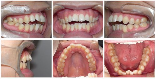 開咬 矯正歯科 症例写真