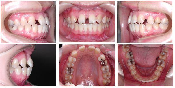 正中離開 矯正歯科 症例