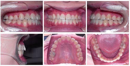 叢生 矯正歯科 症例写真
