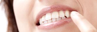 歯並びが悪くなる原因を知りたい(練馬区の矯正歯科)